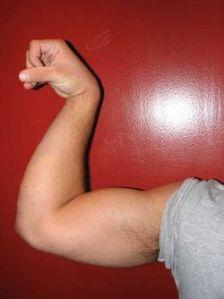 250px-Biceps_887